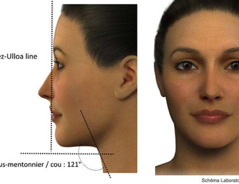 Injection d'acide hyaluronique à Paris - Dr Benachour