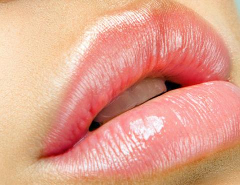 Injection des lèvres avec de l'acide hyaluronique à Paris - Dr Benachour
